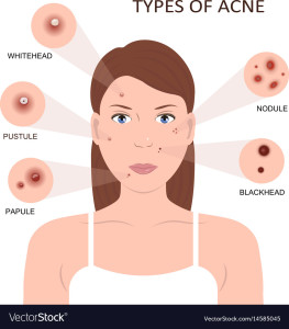 types-of-acne-woman-with-pimples-vector-14585045